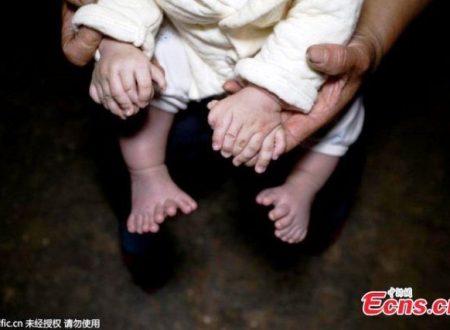 Polidattilia: un bambino cinese è nato con 31 dita tra mani e piedi