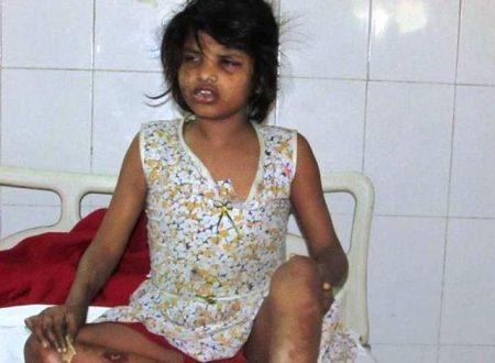 Mowgli girl, la bambina allevata dalle scimmie