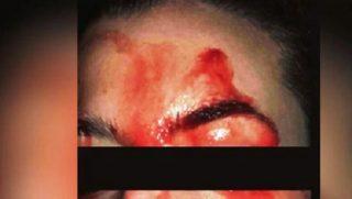 Donna che suda sangue