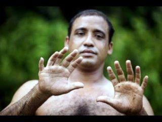 Polidattilia in uomo cubano